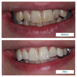 Teeth whitening by Edinburgh dentist