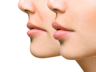 Will it hurt? Facial Fillers Explained (Part 3)