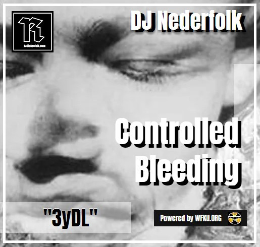 Upoaded : Podcast : Controlled Bleeding