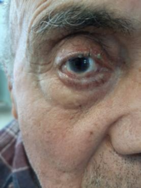 Jamal's eye.png