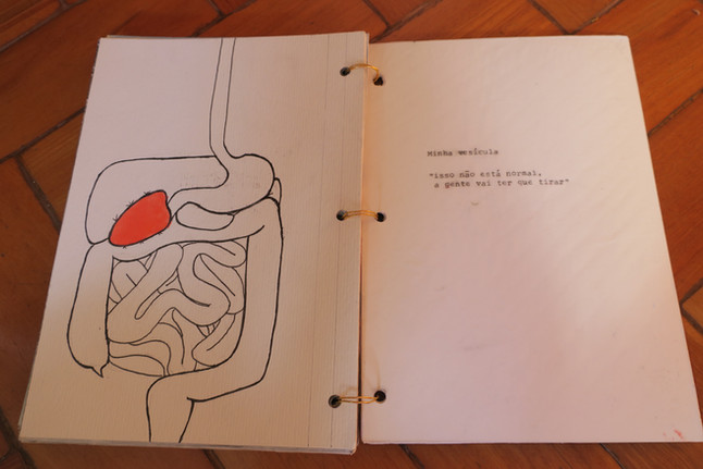 My gallbladder