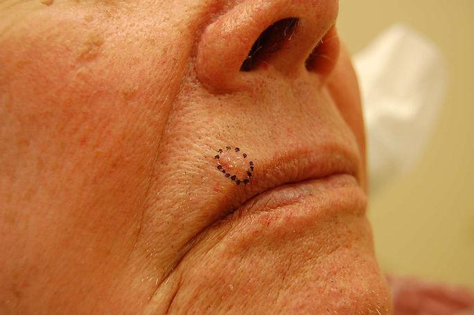 Upper lip BCC.jpg
