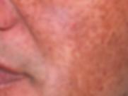 Hyperpigmentation-entfernen-Beauty-Socie