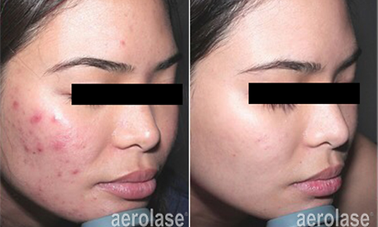 Aerolase Laser Acne Treatment.png