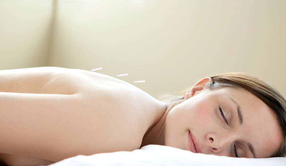 patient relaxing with three acupuncture needles in her back