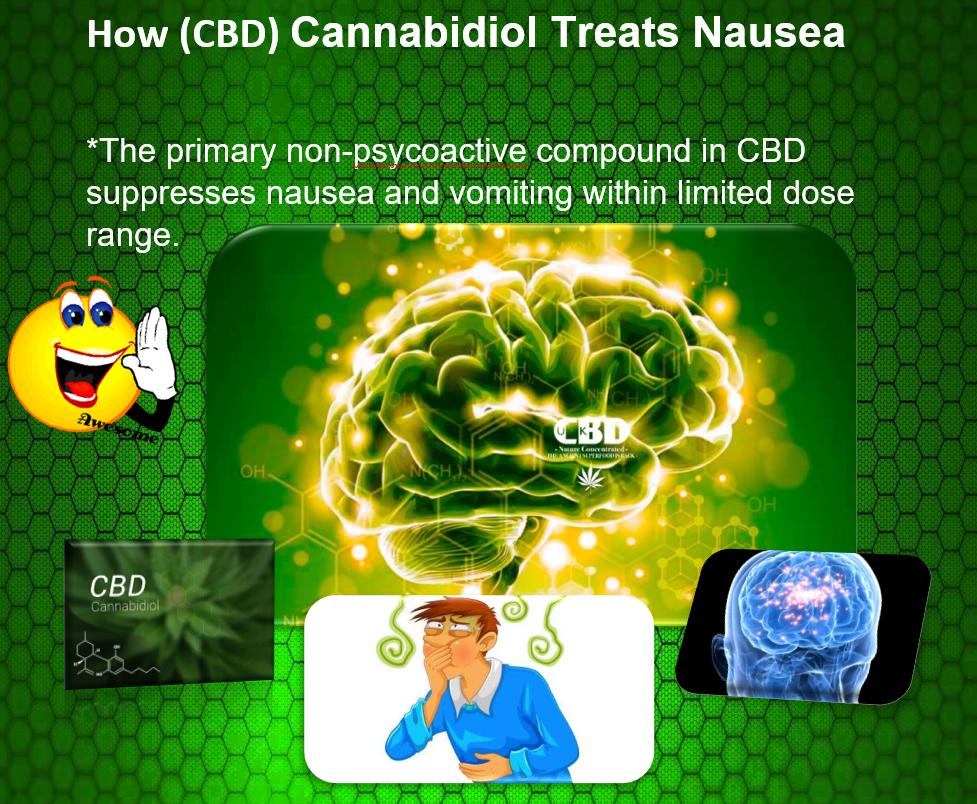 CBD for treating nausea