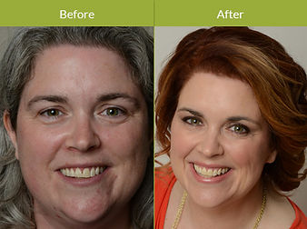 Makeover-Combination-Procedure-Image-New