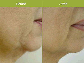 Accent-XL-Facial-Procedure-Image.jpg