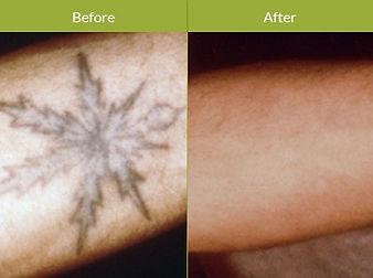Tattoo-Removal-Procedure-Image.jpg