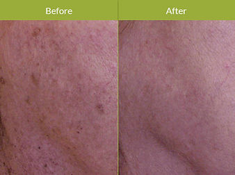 IPL-Photo-Rejuvenation-Procedure(1).jpg