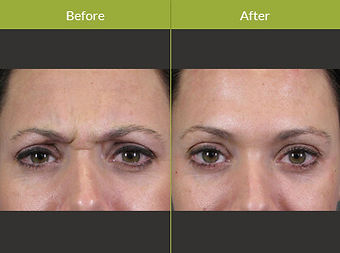 botox-before-and-after-photo-new.jpg