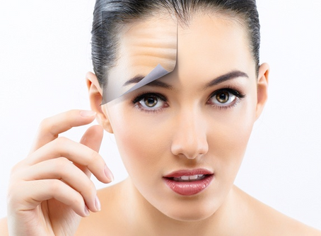 7 Things to Expect After Your Microneedling Treatment