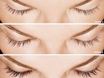 Latisse-Eyelash-Procedure-Image.jpg