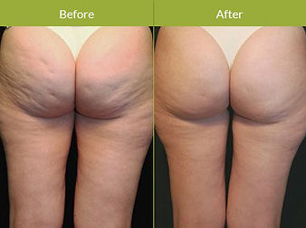 Accent-RF-Cellulite-Procedure-Image.jpg