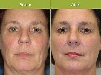 Thermage-Skin-Tightening-Procedure-Image