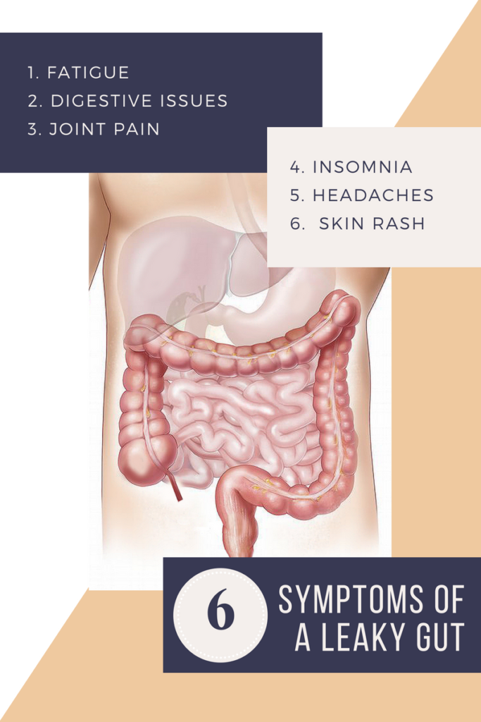 6 Symptoms of Leaky Gut Syndrome