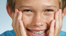 Benefits of Orthodontic Treatment | St George, UT