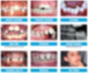 St George Orthodontists