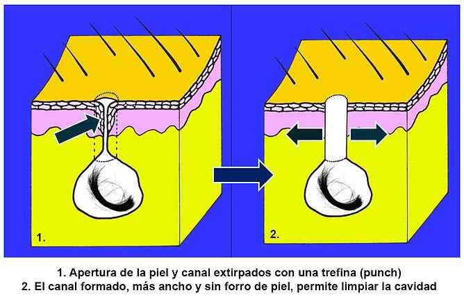 apertura pilonidal extripada con trefina