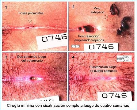escision pilonidal minima empleando trepanos