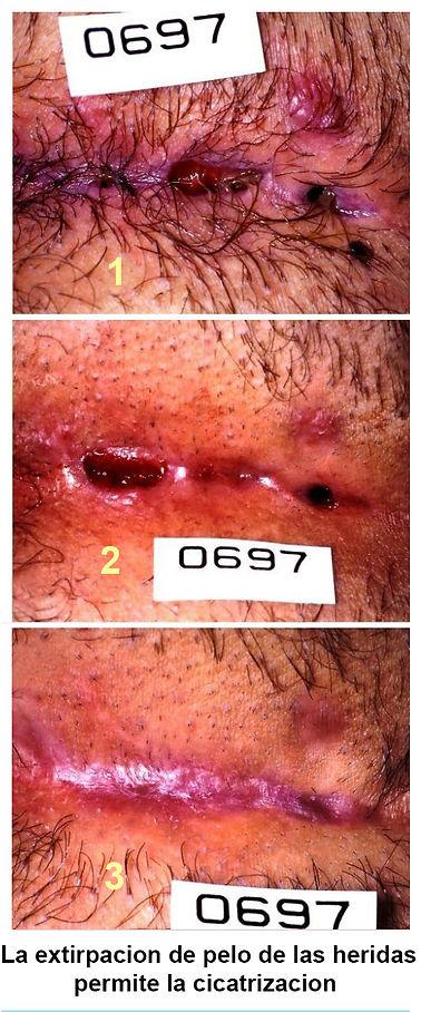extirpacion de pelo permite cicatrizacion