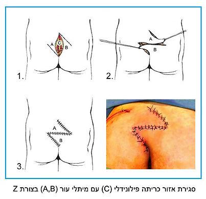 ניתוח מתלה לסינוס פילונידלי