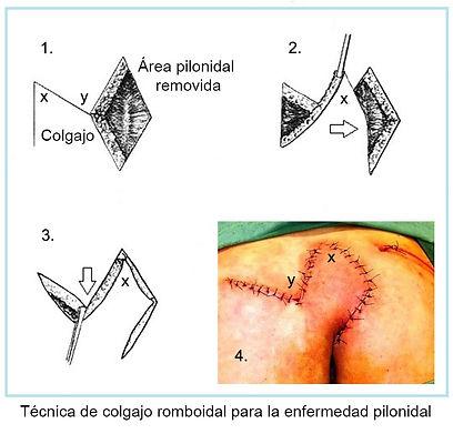 colgajo romboidal en operacion pilonidal