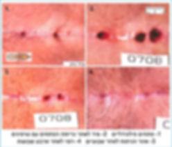 מהלך רפוי ניתוח פילונידלי מזערי