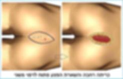 כריתה פילונידלית רחבה והשארת הפצע פתוח