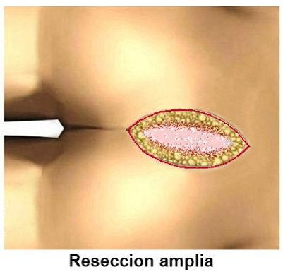reseccion pilonidal amplia