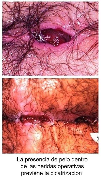 pelo previene cicatrizacion pilonidal