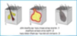 התפתחות סינוס פילונידלי לאחר דלק בבלוטה עורית