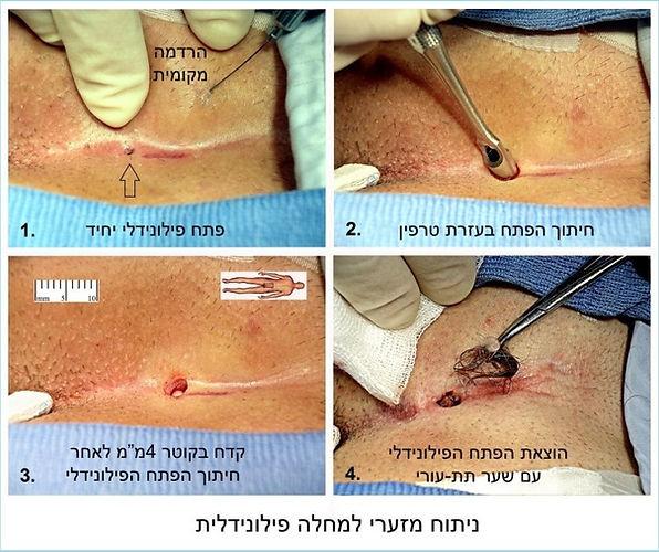 ניתוח פילונידלי עם טרפין