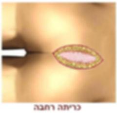ניתוח פילונידלי עם כריתה רחבה