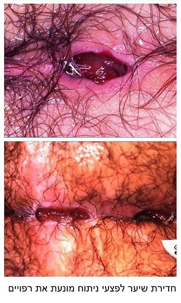 אי רפוי מתמשך לאחר ניתוח פילונידלי