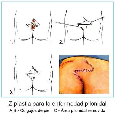 z.plastia en operacion pionidal