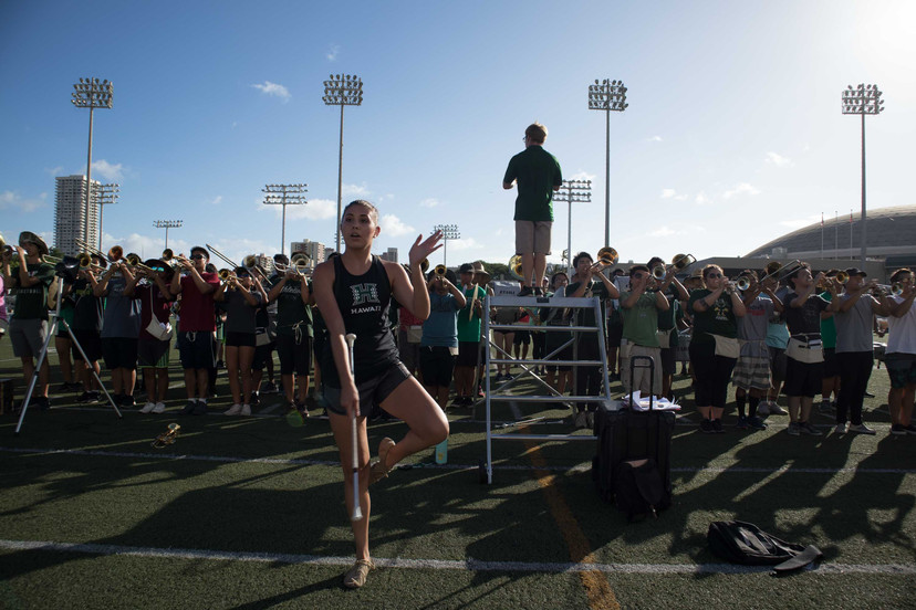 University of Hawaii feature twirler Callyn Marvell was diagnosed with Spina Bifida (birth defect affecting the spinal cord) and had to go through surgeries when she was 3 months old to 4 years old. She admitted that her left leg is numb and incapable of any reflexes due to the surgeries, but her love for twirling has kept her persistent toward her goal.