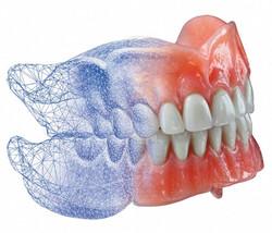 Dentadura Total