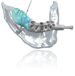 Cirugía4