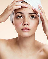 1000-woman-with-acne.jpg