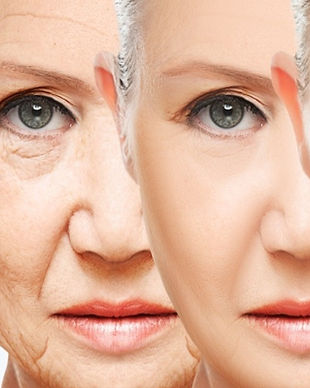 How-to-Get-Young-and-Wrinkle-free-Skin_e