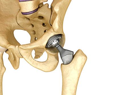 La Protesi d'Anca: un'efficace soluzione a gravi patologie articolari