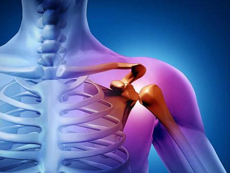 Instabilità di spalla: cos'è e come intervenire