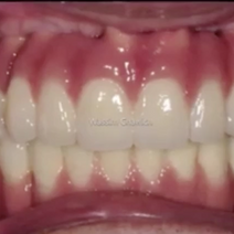Full mouth reconstruction with 16 implants and 2 sinus lifts for Dr Wassim Chawich