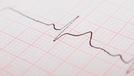 «Одна ЭКГ и совершенно разные результаты ее анализа»