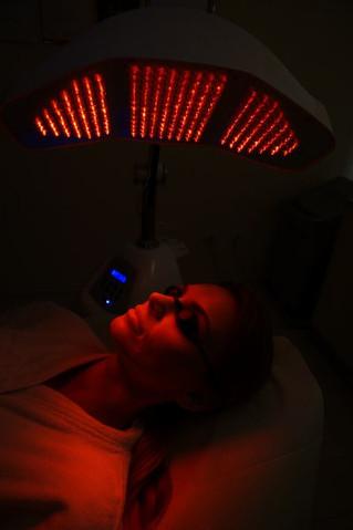 Terapie skojarzone w leczeniu wypadania włosów