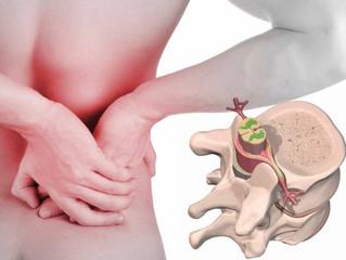 Que son las hernias de disco?