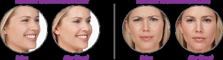 Botox & Juvederm Cosmetic - Hallandale Beach Dental