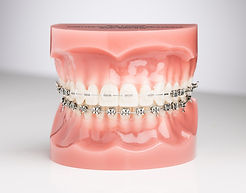 braces_ceramicbraceswithligatures.jpg