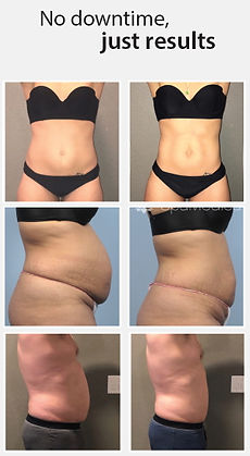 weight loss lexington ky